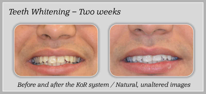 Teeth whitening 1-2
