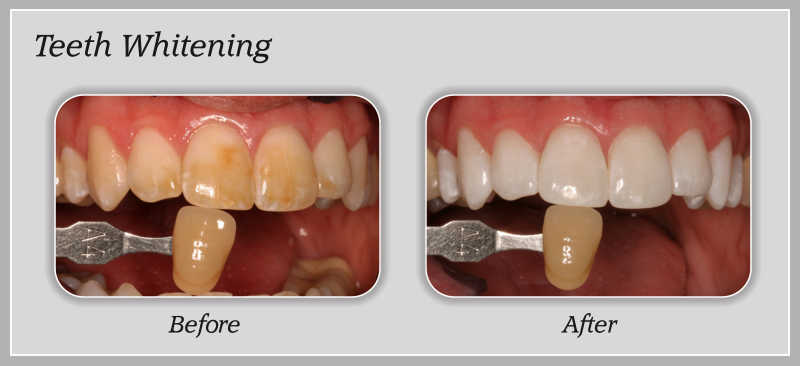 Teeth whitening 3-4